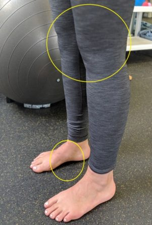 tibialis posterior supporting arch