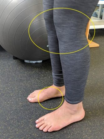 Tibialis posterior falling arch